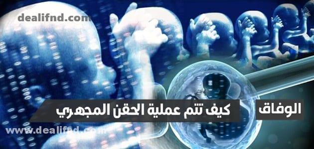 كيف تتم عملية الحقن المجهري